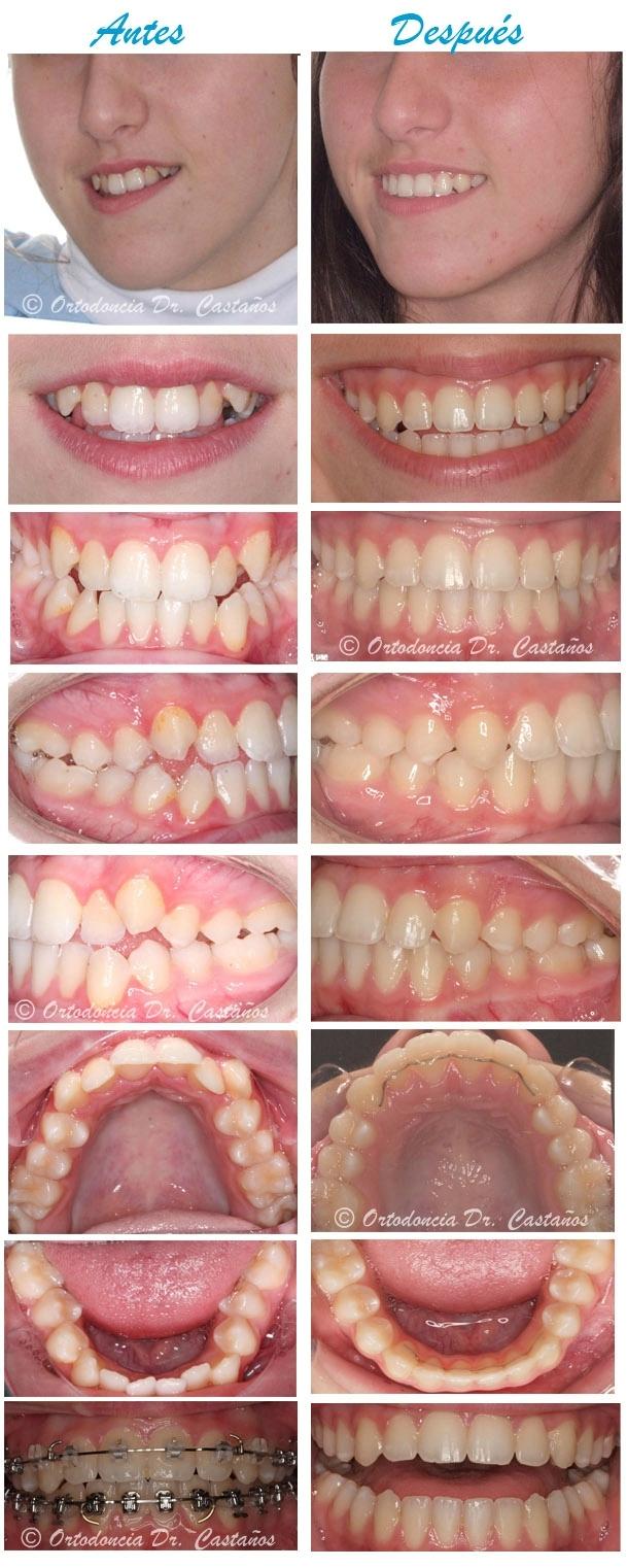 Clase III con dentición definitiva